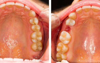 How long after an extraction can an Implant be placed?