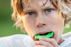 Martin Dental Children's Mouth Guard
